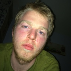 Mattye (20)